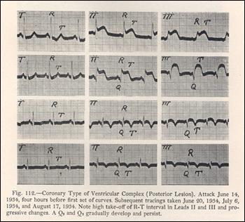 Electrocardiograph of Coronary Thrombosis