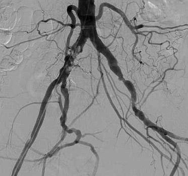 Bifurcation Atherosclerosis